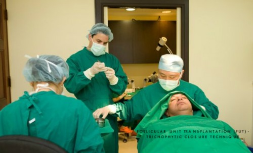 Hair Transplant Clinic in Australia Promotes Hair Transplant Scar Minimization Technique