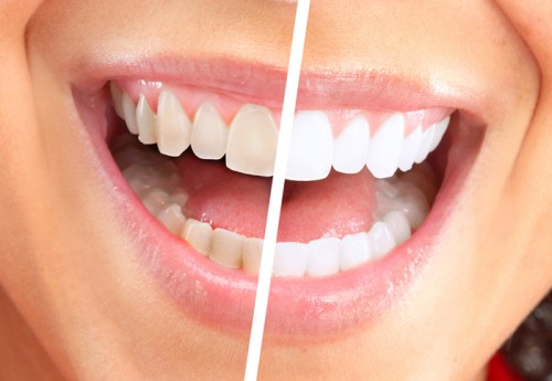 indianwells-cosmetic-dentistry-porcelain-veneers