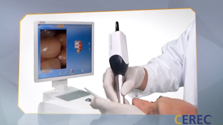 video_thumb___cerec_dental_restorations