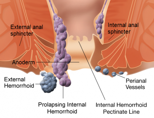 hemorrhoids-home-treatment