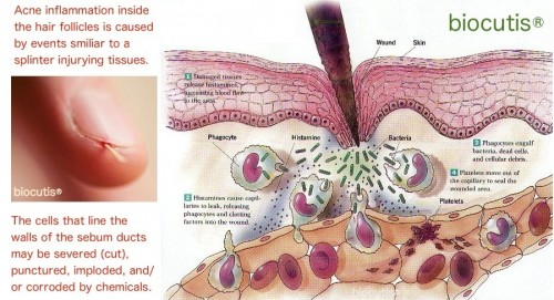 acne-inflammation-injuries
