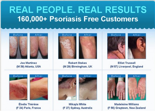 Clinically Proven 7 Step Holistic System for curing and preventing Psoriasis Permanently 1