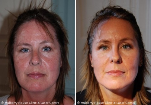 Mulberry House Clinic Laser Centre Publishes New Rosacea Case