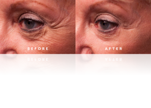 Best Anti Aging Skin Wrinkle Serum Instantly Ageless Cream Just Released