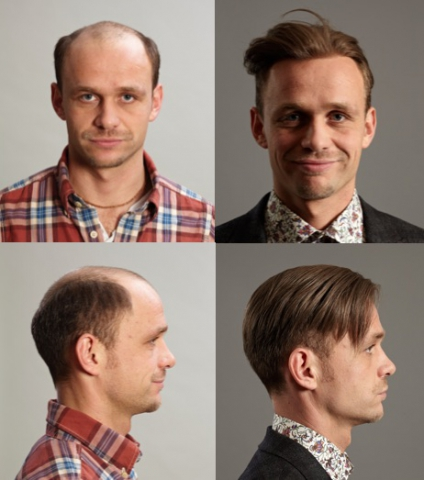 London Hair Replacement Male Pattern Baldness Thinning Expert Stunning Male Pattern Baldness