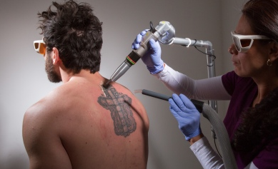 Tattoo Removal in San Antonio, TX Affordable Says Local Clinic «