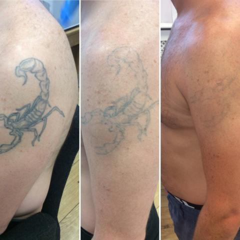 Help at hand for erasing world cup tattoos for Tattoo removal columbia sc