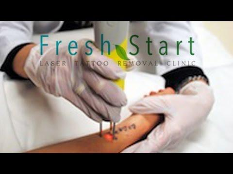 San Antonio Tattoo Removal Answers Is Tattoo Removal Painful In ...