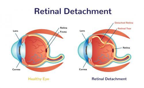 California Headline - Retina Treatment Market Technology for